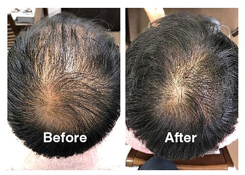 橿原市かしはら もりもと接骨院。経験豊富な施術院ならではの、幹細胞培養液を使った『発毛プログラム』。自律神経や栄養、生活習慣へのアドバイスで抜け毛や薄毛の原因に根本からアプローチする。6か月以内の発毛満足度は99.8%! まずは発毛診断カウンセリングで悩みを相談して。